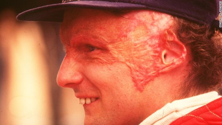 Ники Лауда после аварии в Нюрбургринге, 1976