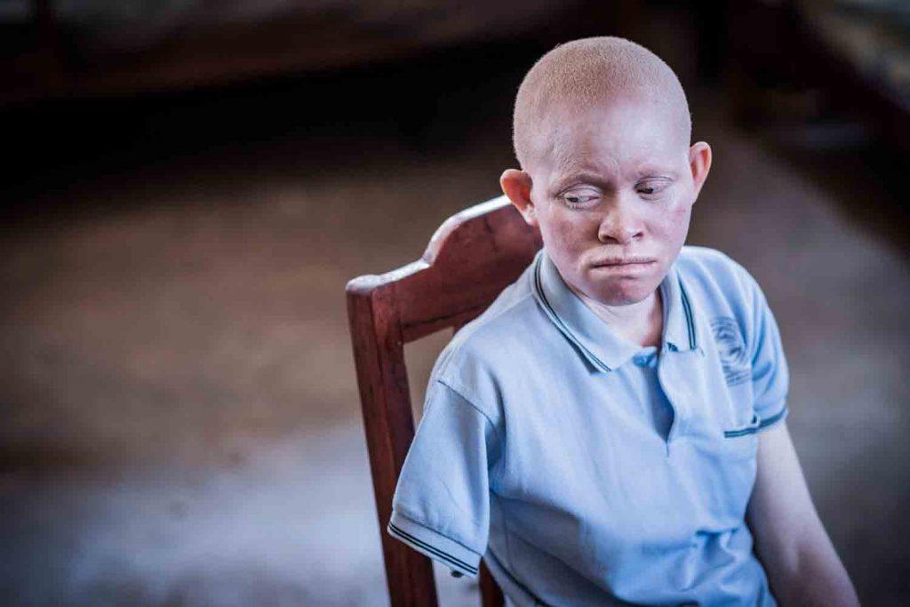 Жертва суеверий - местные знахари используют части тела альбиносов в качестве талисманов