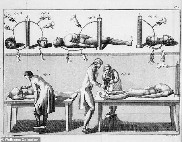 Алдини Гальвани стал первым человеком, который решился проверить эффект гальванизма на теле человека