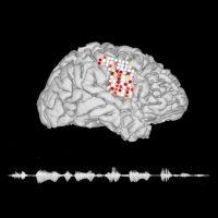 Учёные научились переводить мозговую активность в человеческую речь