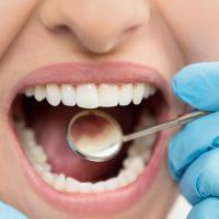 Китайские учёные научились восстанавливать зубную эмаль