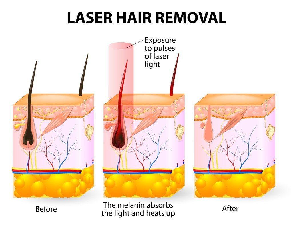 История развития технологии лазерной эпиляции